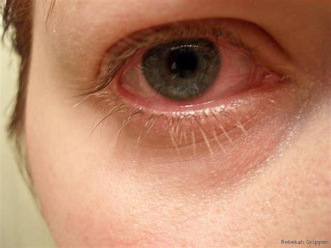 Swimming Pool Designer Bloodshot Eyes Bloodshot Eyes Question And Answers