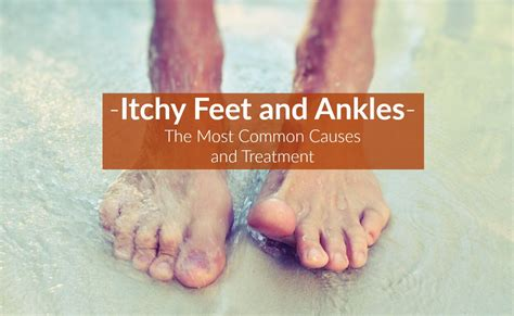 Symptoms Of Sugar Detox Itch by Itchy And Ankles Causes Symptoms Treatment