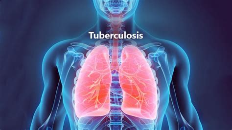 tuberculosis tb  symptoms treatment