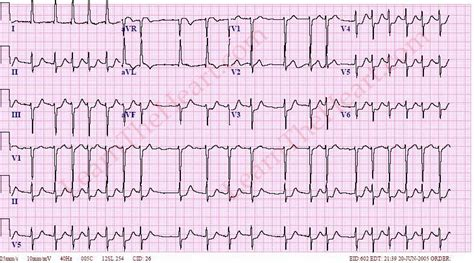 atrial fibrillation with rvr 2 learntheheart