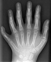x ray wikis the full wiki