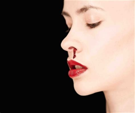 bloody nose help with bloody nose in auckland hamilton bay of plenty wellington christchurch