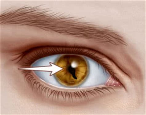 coloboma — symptoms, causes, and management