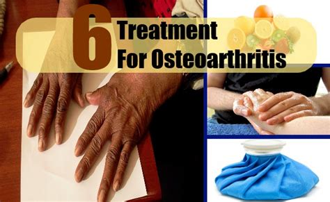 Suplemen Osteoarthritis 6 cures for osteoarthritis how to cure