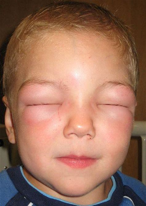 reazione allergica alimentare urticaria hives itchy skin welts and angioedema