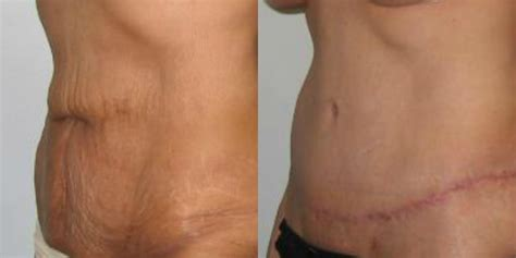 tummy tuck after c section medicare tummy tuck