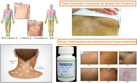 best treatment tinea versicolor tinea versicolor treatment defenderauto info