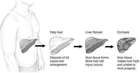 liver failure stages liver cirrhosis alcoholic alcoholic cirrhosis