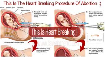 how to abort a baby at home breaking procedure of abortion warning this will