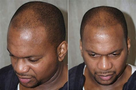 african american hair transplant different hair fixing style black hairstyle and haircuts