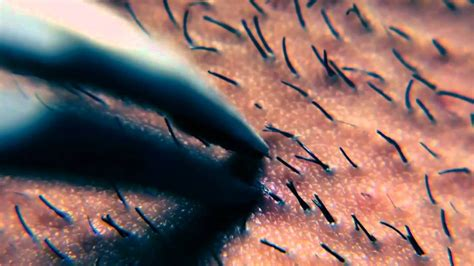 plucking ingrown hair ingrown hair pluck close up