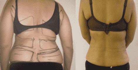 vaser liposuction before after dr amit gupta divine