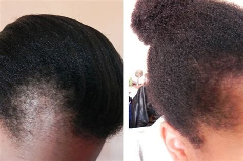 growing back afro american hair after chemo 12 things black women have been told about their hair that