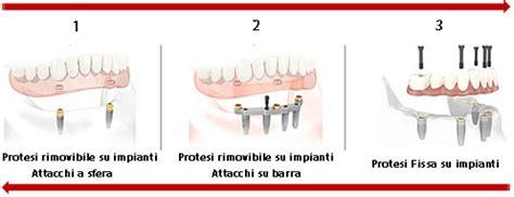 protesi mobile su impianti overdenture protesi economiche su impianti dentali