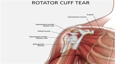 torn rotator cuff diagram to heal a torn rotator cuff madwa