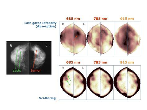 test polimi optical mammography dipartimento di fisica politecnico
