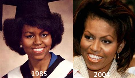 michelle obama eye surgery michelle obama facelift bing images michelle obama before and after bing images