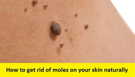 get rid of moles 3 easy natural remedies you won t