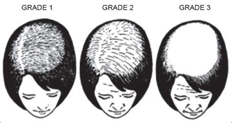 ludwig pattern hair loss female pattern hair loss singal a sonthalia s verma p