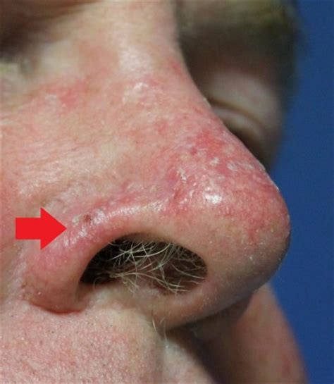 nose cancer skin cancer nose and skin graft before and after