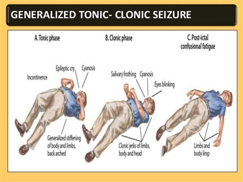 grand mal seizure epilepsy and its management ppt