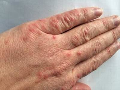 hand foot mouth disease rash what does hand foot and mouth disease look like