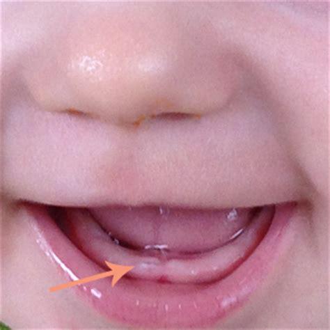 wann baby erster zahn der erste zahn sommerelfe