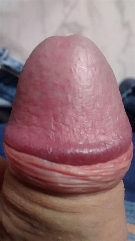 picor entrada vagina manchitas rojas en el glande