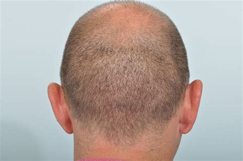 hair style for men haur transplant scar scar from hair transplant donor area photos