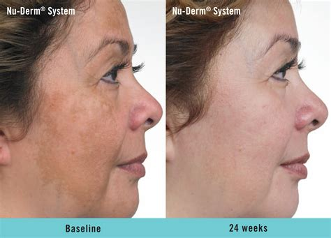 before and after pictures of pigmentation on skin hyperpigmentation treatment zcosmetic health
