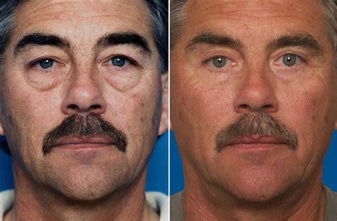 surgically change eye color eye lid surgery dr romano san francisco