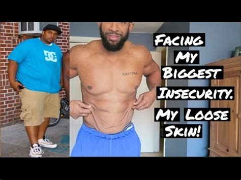 Out With The Excess Weight by Skin Insecurities 140lb Weight Loss Facing My