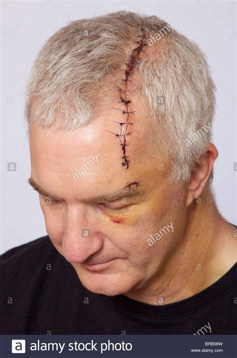 stock images similar to id 108133865 stitches on arm after with wound and stitches stock photo 31589177 alamy