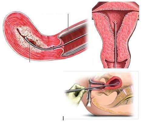 vagina interior vagina interior photos