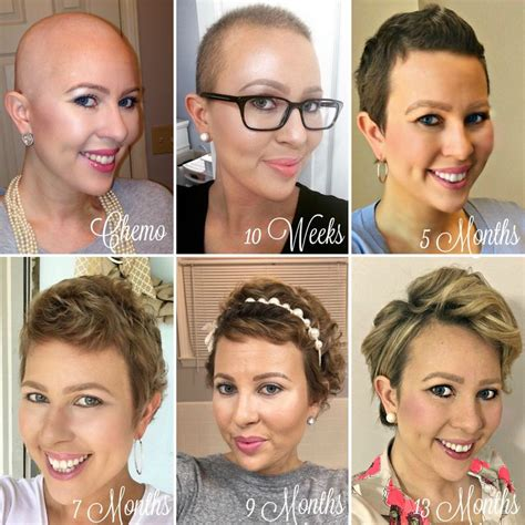 styling hair after chemo 1 year hair growth chemo hairless my cancer chic my