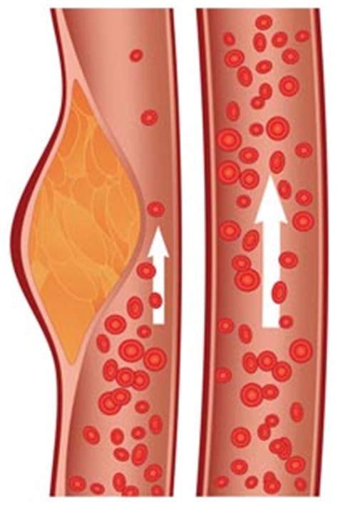 colesterolo alimenti per abbassarlo colesterolo ldl alto nella dieta per abbassarlo