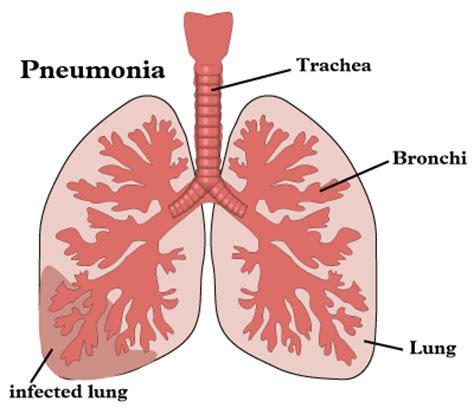 Obat Sesak Nafas Tradisional Pada Bayi obat tradisional pneumonia tanpa efek sing obat liver