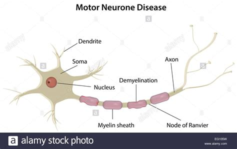 motor neurone disease stock vector illustration