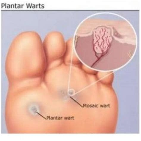 How To Treat A Planters Wart On Your Foot by Treatment Of Plantar Wart Herbal