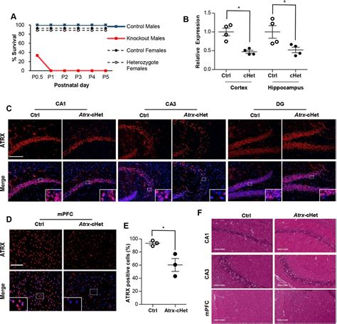 mosaic pattern protein mosaic expression of atrx in the mouse central nervous