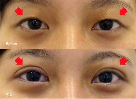 double eyelid single eyelid vs double eyelid www pixshark com images