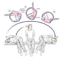 canalith repositioning procedure for vertigo active