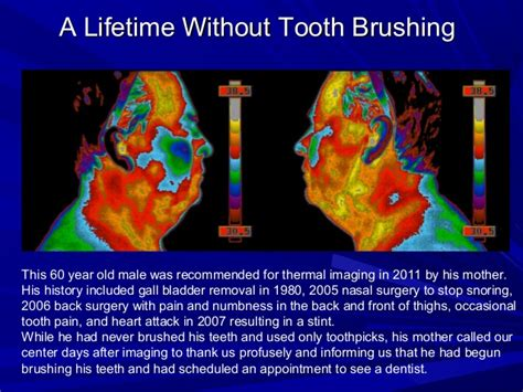 thermal for teeth thermal imaging exles of tooth issues