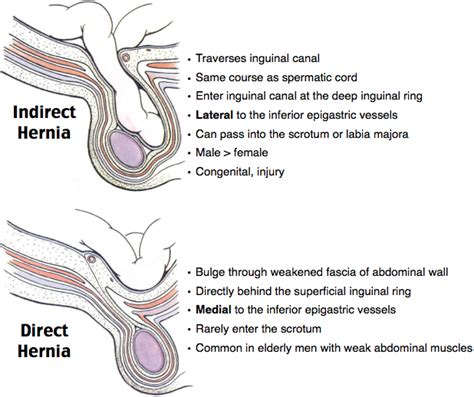 inguinal hernia the gallery for gt hesselbachs triangle