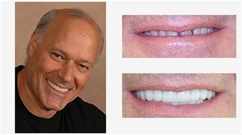small teeth smile gallery exceptional dentistry dr