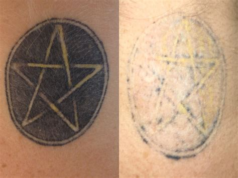 brisbane tattoo removal laser removal brisbane