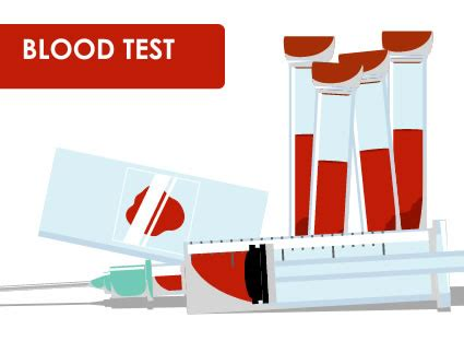 Mba Blood Test by Blood Test Clipart Jaxstorm Realverse Us