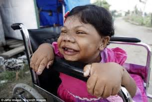 born different documentary indonesia 24 year old girl that looks like a toddler