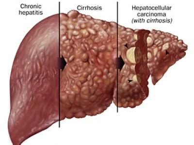 liver cirrhosis curing in uctc