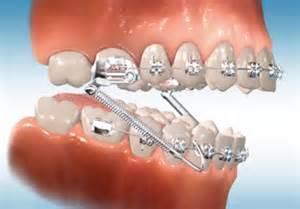Interior Mold Removal Glossary Evans Orthodontics Rapid City Sd